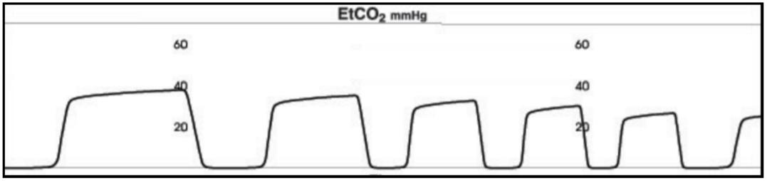 etco2-3